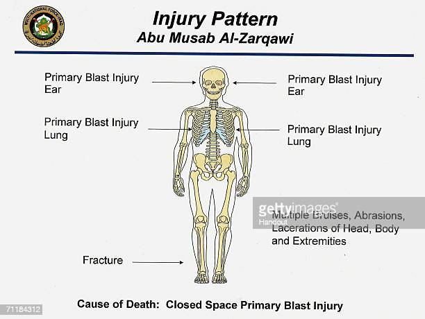 This is a photo released by MultiNational Force Iraq on June 12 2006 showing an illustration of the injury pattern constant with a US air strike on...
