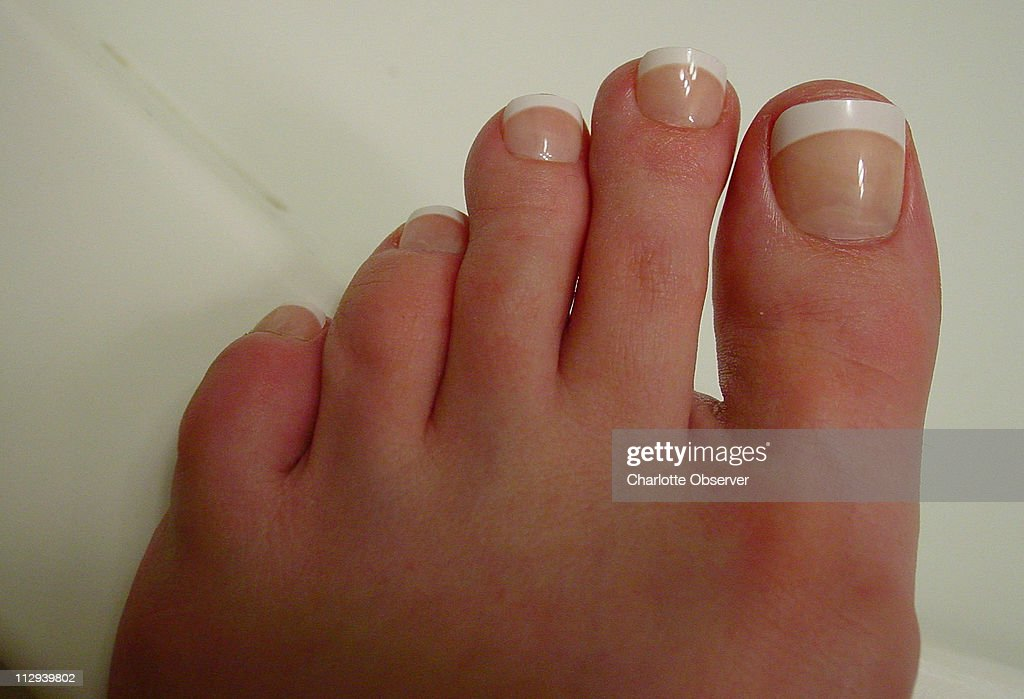 This is a photograph of Robin Johnston\'s toenails after fake ...