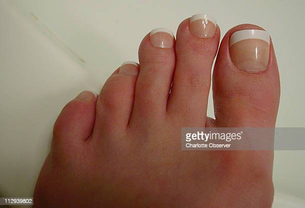 This is a photograph of Robin Johnston's toenails after fake toenails