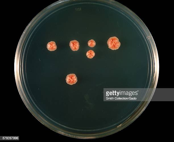 This is a plate culture of the bacteria Nocardia asteroides grown on 7H10 agar medium at 37° C 1969 The bacterial complex Nocardia asteroids is a...