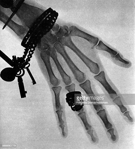 This is one of the first Xray photographs taken in the UK to a woman's hand with ring bracelet and a chain with keys Wilhelm Conrad Roentgen...