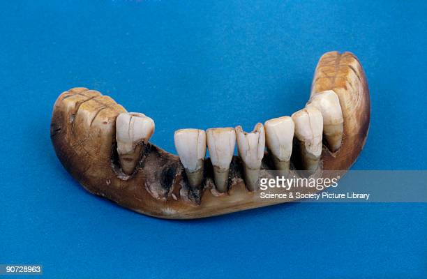 This lower denture set is made of elephant ivory with human anteriors It shows caries in both the teeth and plate The first false teeth were made by...