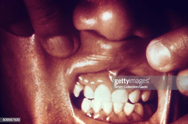 This patient presented with scorbutic gums due to a vitamin C deficiency The condition referred to as scorbutic gums involves inflammation of the...