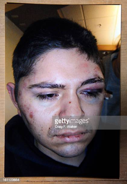 This photo of Michael DeHerrera at Swedish Hospital after being beaten by Denver Police officers was supplied by DeHerrera's father Michael DeHerrera...