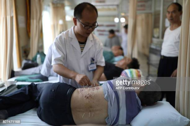 This photo taken on August 7 2017 shows a patient receiving acupuncture treatment at a hospital in Shenyang in China's northeastern Liaoning province...