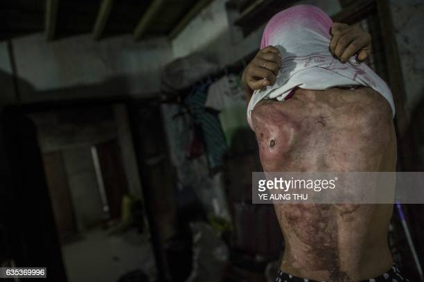TOPSHOT This photo taken on February 13 2017 shows 14year old Khin Khin Tun with deep scars on her back at Mawlamyine some 300 kms southeast of...