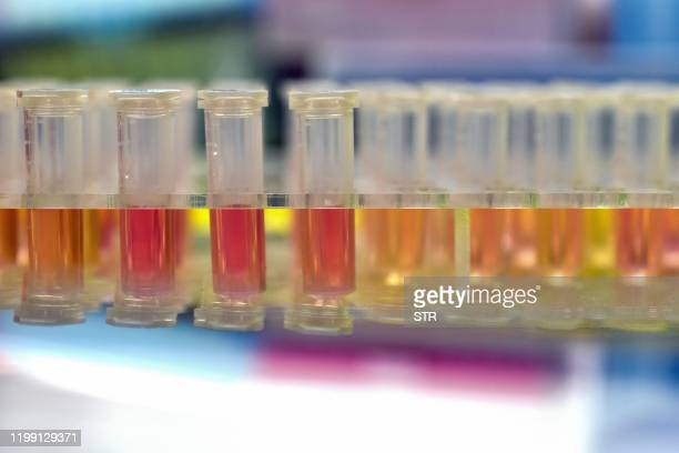 """This photo taken on February 6, 2020 shows samples from people to be tested for the new coronavirus at """"Fire Eye"""" laboratory in Wuhan in China's..."""