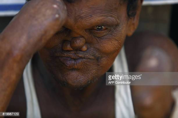 This photo taken on July 13, 2017 shows leprosy sufferer Ram, who lost his hands and toes to the disease, begging on the streets of Kathmandu....