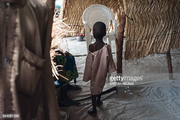 This photo taken on June 30 2016 shows a malnourished boy walking towards his mother at one of the Unicef nutrition clinics in the Muna informal...