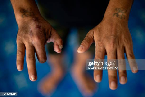 TOPSHOT This photo taken on September 20 2018 shows Kyaw Thet Oo a Myanmar migrant worker showing his disfigured right hand from a work accident for...