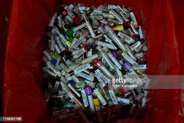 This photograph taken on June 7 2019 shows test tubes containing remnants of biological samples discarded in a waste bin at Lancet laboratories the...