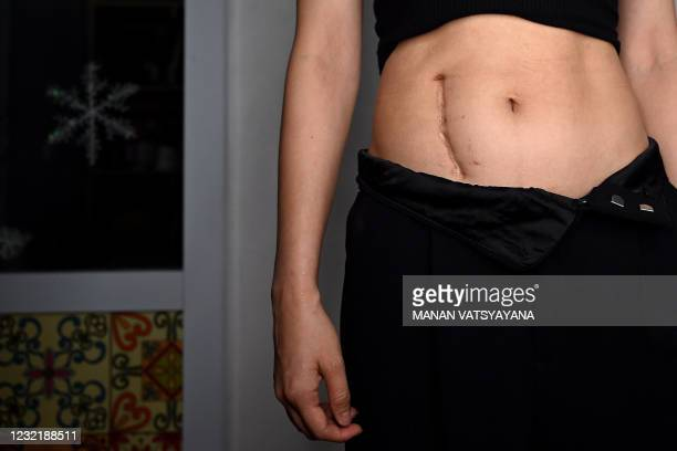 This photograph taken on March 20, 2021 shows a female customer posing with her post-surgery scar before a tattoo procedure at tattoo artist Ngoc...