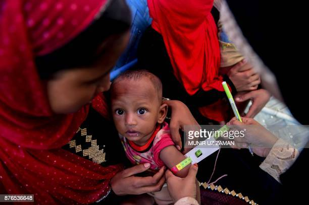 This photograph taken on November 16 2017 shows a young Rohingya Muslim refugee boy suffering from malnutrition while his arm is measured at a center...