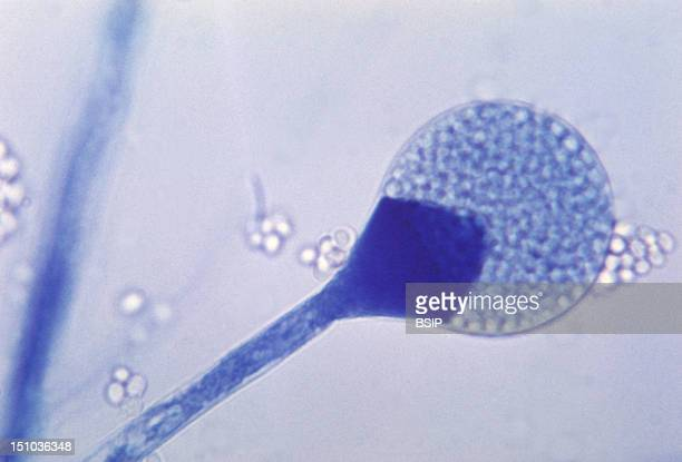 This Photomicrograph Shows A Close Up Of A Mature Sporangium Of A Mucor Sp Fungus Mucor Is A Common Indoor Mold And Is Among The Fungi That Cause The...