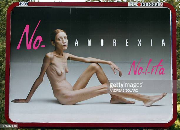This picture taken 26 September 2007 in Rome shows an Italian advertising campaign featuring French actress and anorexia sufferer Isabelle Caro...
