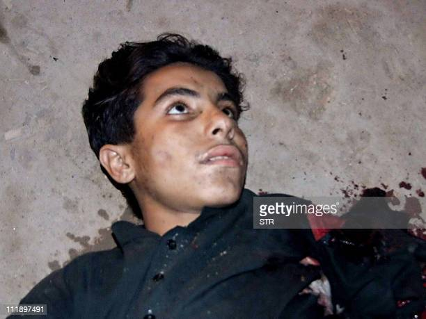 This picture taken on April 3 2011 shows an injured suicide bomber whose explosive vest partially detonated lying on the ground after a suicide...