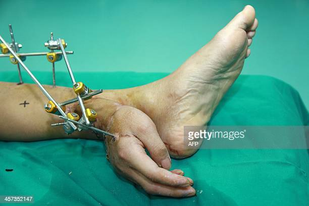 This picture taken on December 4 2013 shows Xie Wei's hand grafted to his ankle in a hospital in Changsha central China's Hunan province Chinese...