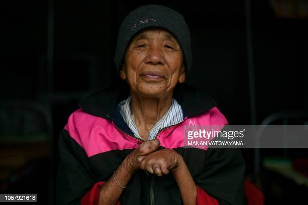 This picture taken on January 10 2019 shows a leprosy survivor Nguyen Van Phuc posing for a photograph at the Van Mon Leprosy hospice compound...