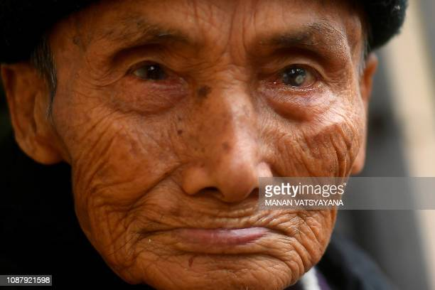 This picture taken on January 10 2019 shows leprosy survivor Nguyen Ba Chuyen posing for a photograph at the Van Mon Leprosy hospice compound...