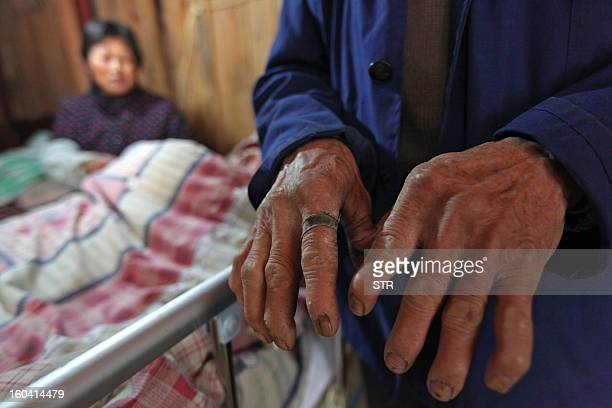 This picture taken on January 28 2013 shows Fu Xuepeng's father Fu Minzu showing his coarse hands as he stands next to the bed of his son Fu Xuepeng...