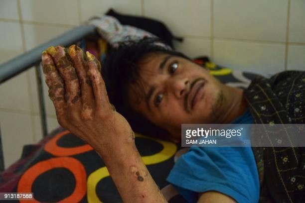 This picture taken on January 31 2018 shows Tree Man Abul Bajandar at Dhaka Medical College Hospital in Dhaka A year ago Abul Bajandar a Bangladeshi...