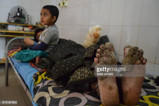 """This picture taken on January 31, 2018 shows """"Tree Man"""" Abul Bajandar with his daughter at Dhaka Medical College Hospital in Dhaka. A year ago Abul..."""