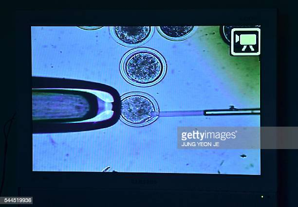 This picture taken on June 29 2016 shows a screen displaying a process of removing a nucleus from a donor egg at the Sooam Biotech Research...
