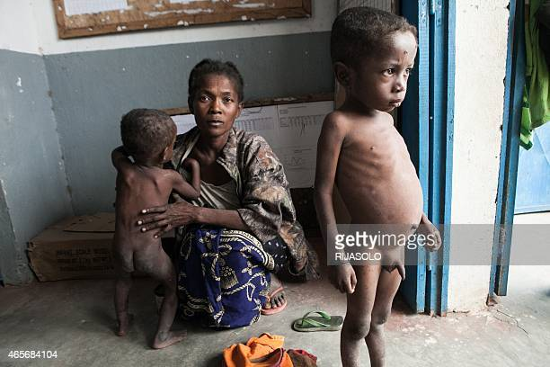 This picture taken on March 4 2015 shows a woman and her two severely malnourished children waiting to be treated by a doctor at the health center in...