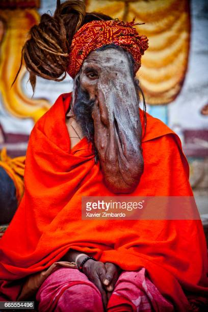 This sadhu nicknamed Elephant Man is suffering from neurofibromatosis and adored by the Hindu pilgrims as he looks like Ganesh the God with an...