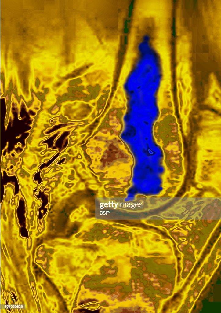 Osteonecrosis Of The Knee Rmn : News Photo