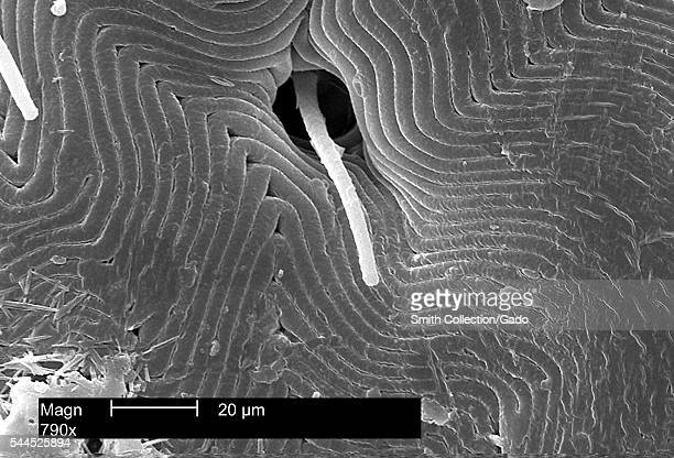 This scanning electron micrograph depicts a dorsal view of the back of an American dog tick, Dermacentor variabilis, magnified 790X, enabling you to...
