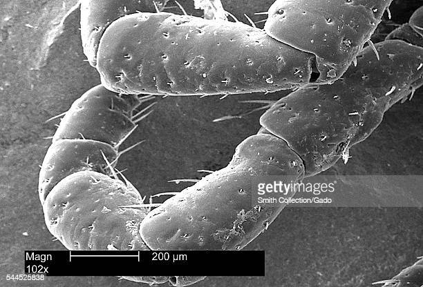This scanning electron micrograph depicts a dorsal view of the leg appendages of an American dog tick, Dermacentor variabilis, magnified 102X, 2002....