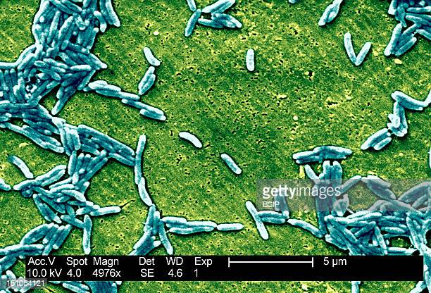 This Scanning Electron Micrograph Depicts A Grouping Of Gram Negative Campylobacter Fetus Bacteria Magnified 4976X The S Shaped C Fetus Bacterium...