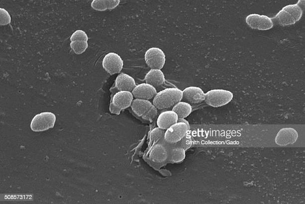 This scanning electron micrograph depicts a small group of Grampositive Enterococcus faecalis bacteria Image courtesy CDC/Pete Wardell 1982
