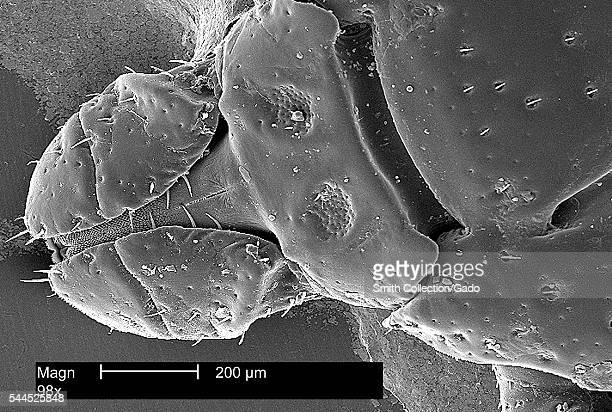 This scanning electron micrograph depicts the dorsal view of the head region from an American dog tick, Dermacentor variabilis, magnified 98X, 2002....