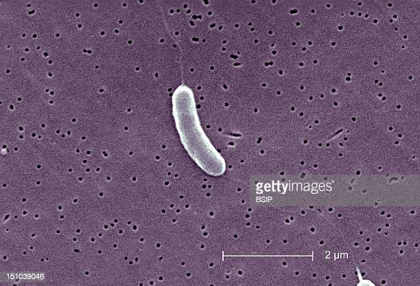 This Scanning Electron Micrograph Sem Depicts A Flagellated Vibrio Vulnificus Bacterium Mag 13184X Vibrio Vulnificus Is A Bacterium In The Same...