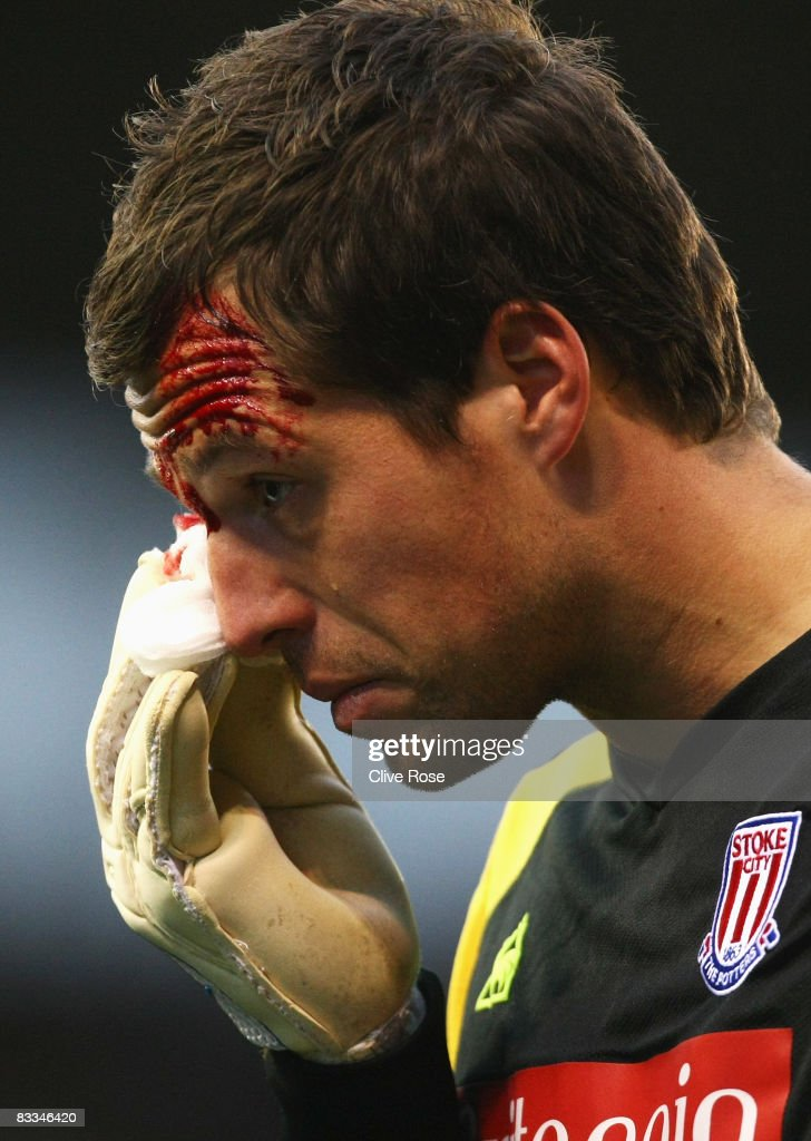Thomas Sorensen of Stoke City leaves the field as blood pours from a cut during the Barclays Premier League match between Stoke City and Tottenham Hotspur at the Brittania Stadium on October 19, 2008 in Stoke, England.