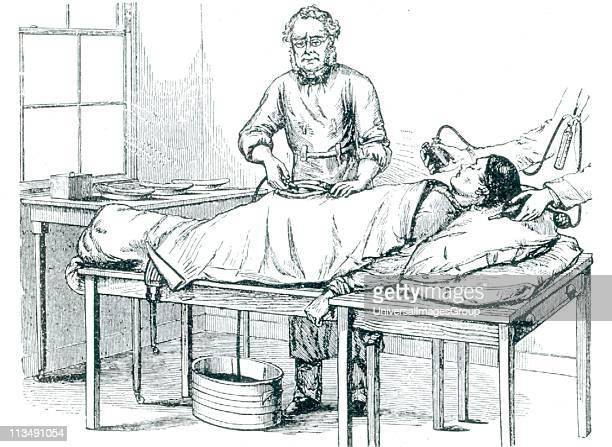 Thomas Spencer Wells British gynaecolotist who perfected ovariotomy performing an operation on a patient anaesthetised by chloroform c1870