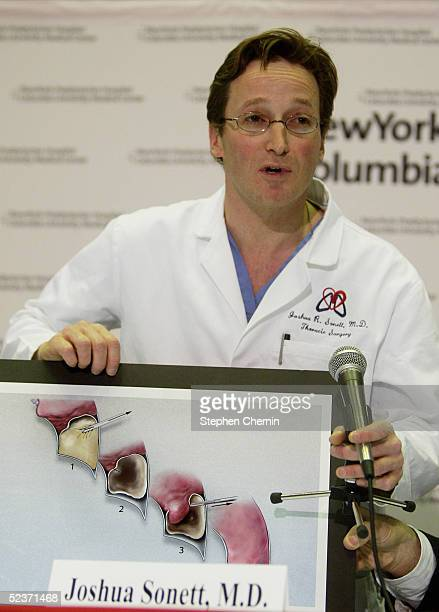 Thoracic surgeon Dr Joshua Sonett holds a crosssection diagram of a chest cavity as he explains the procedure performed on former US President...