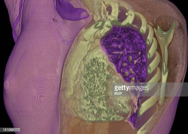 Thoracic Wall Of Right Breast And Mediastinum 3D Ct Scan The Icon At The Bottom Right Indicates The Image's Perspective A Anterior P Posterior R...