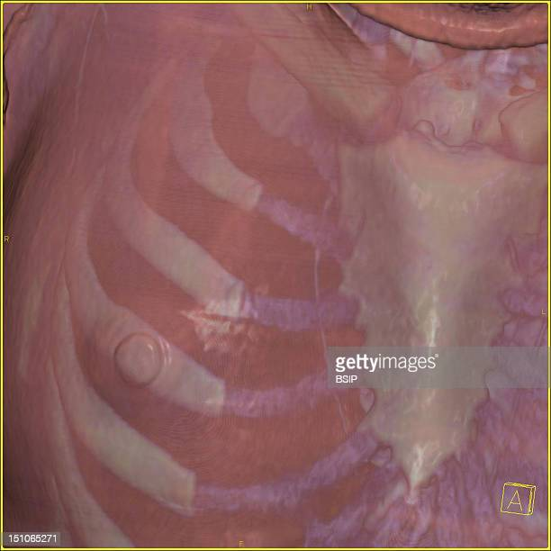 Thoracic Wall Of Right Breast And Sternum 3D Ct Scan The Icon At The Bottom Right Indicates The Image's Perspective A Anterior P Posterior R Right L...