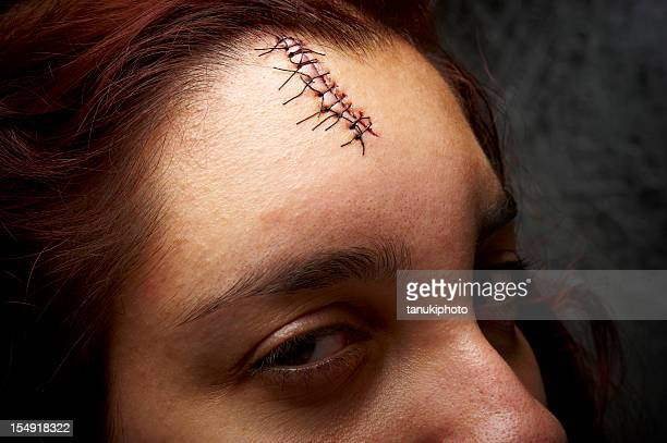 threatening look. - medical stitches stock photos and pictures