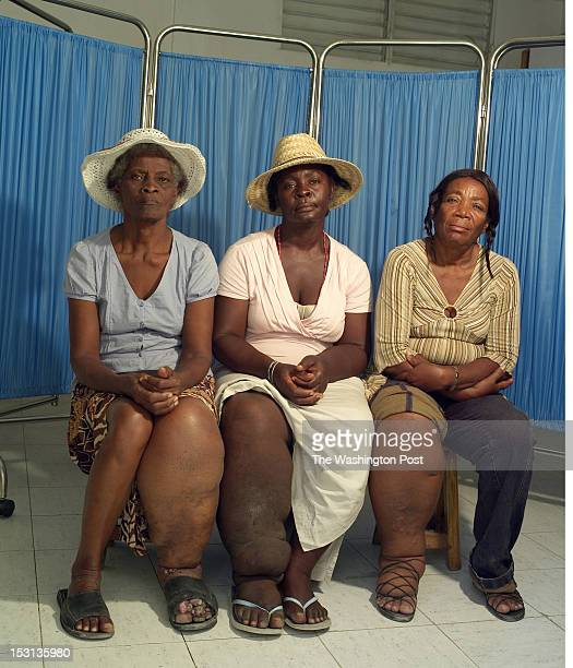 Three female patients of Dr Luccene Desir director of the Center of Research for Filariasis in Haiti display their legs affected by elephantiasis at...