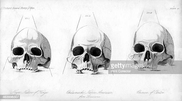 Three types of human skull 1848 Comparison of a Negro Chilamache native American and Chinese During the 19th century it was believed that negroes and...