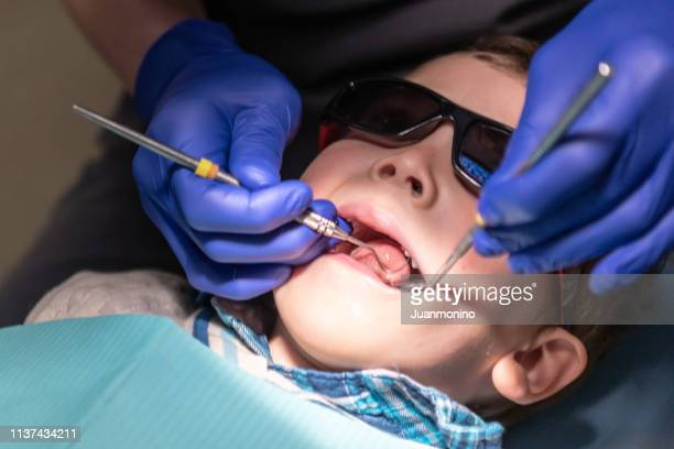 three years old child with his open mouth while dentist works his teeth - dental fear stock pictures, royalty-free photos & images