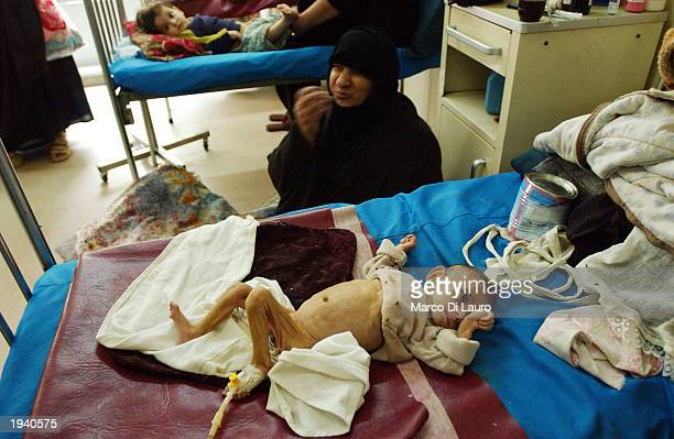 A threemonthold Muslim Shia baby lies affected by famine in a local hospital in the Shia neighborhood of Saddam City April 19 2003 in Baghdad Iraq...