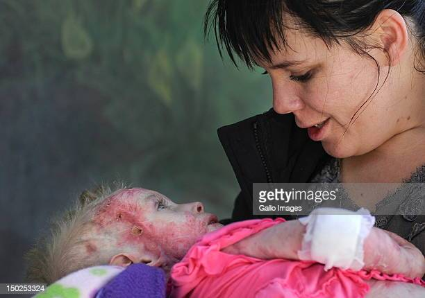 Threeyearold burn victim Isabella Pippie Kruger is held by her mother Anice Kruger during her first visit home following a revolutionary skin...
