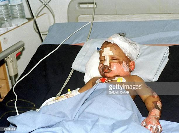 Threeyearold Sudanese boy Mohammed alFateh the sole survivor of a Sudan Airways plane crash near the eastern city of Port Sudan lies in hospital in...