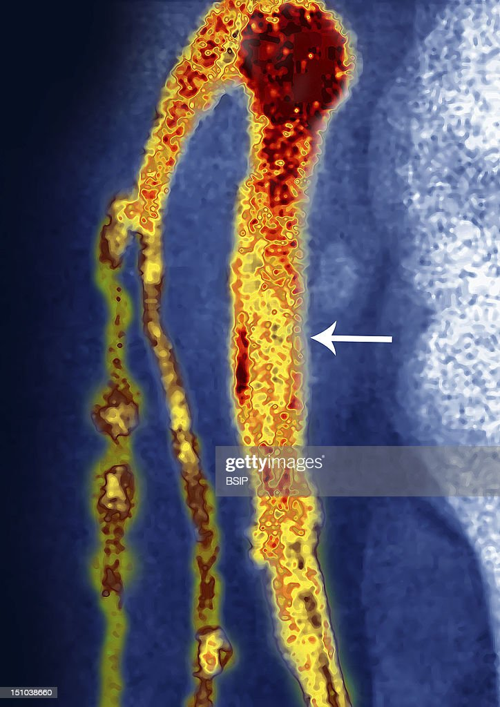 Thombosed Vein, Angiography : News Photo