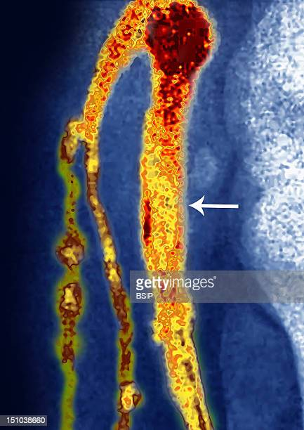 Thrombosis Of The Popliteal Vein Deep Vein Thrombosis Phlebography Of The Right Knee In Side View Deep Vein Thrombosis Is The Formation Of Thrombus...